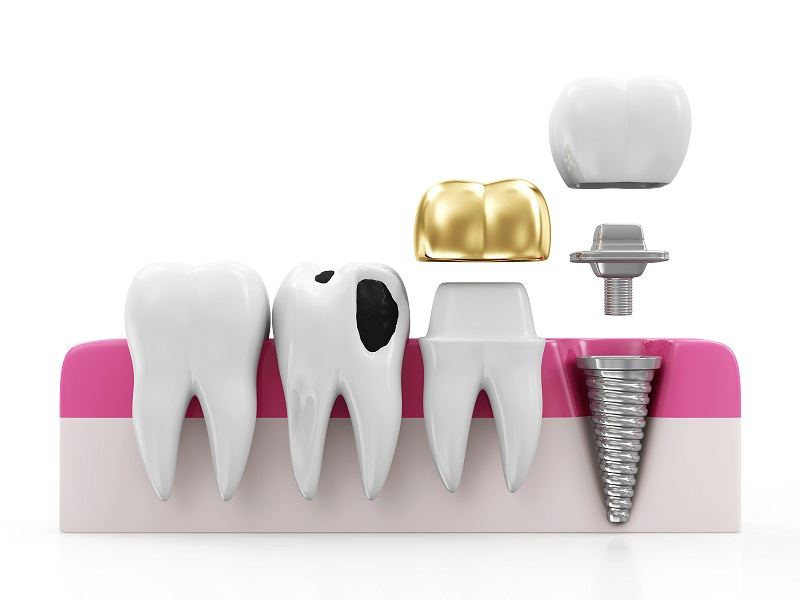 Implant-Supported Bridges Wilmslow