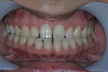 Tooth Straightening, Tooth Straightening