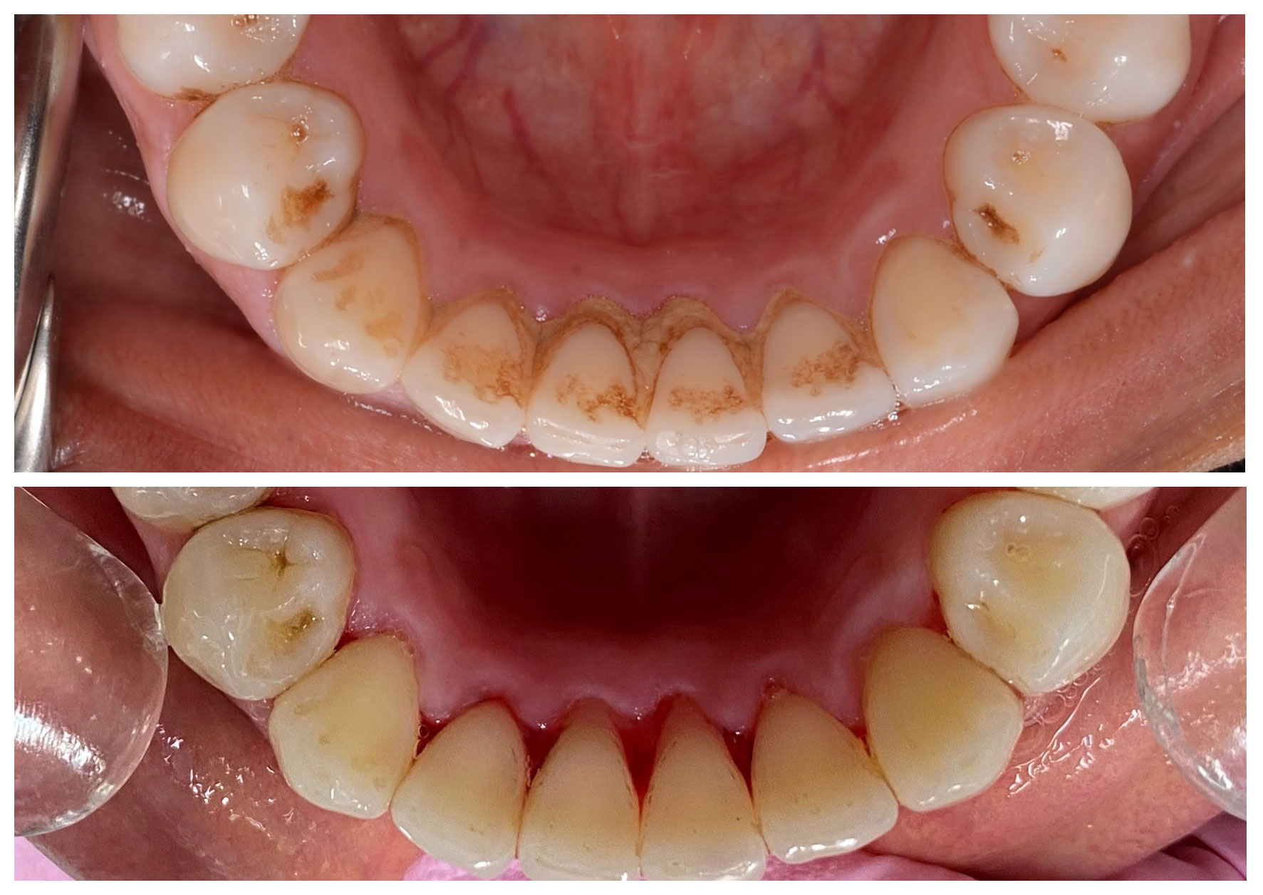 dentist alderley, General Dentistry