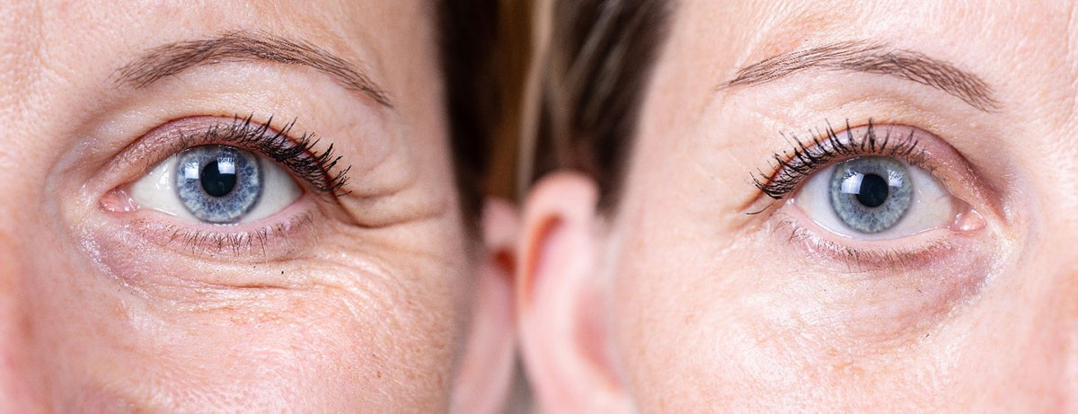 Anti Wrinkle Injections Before After