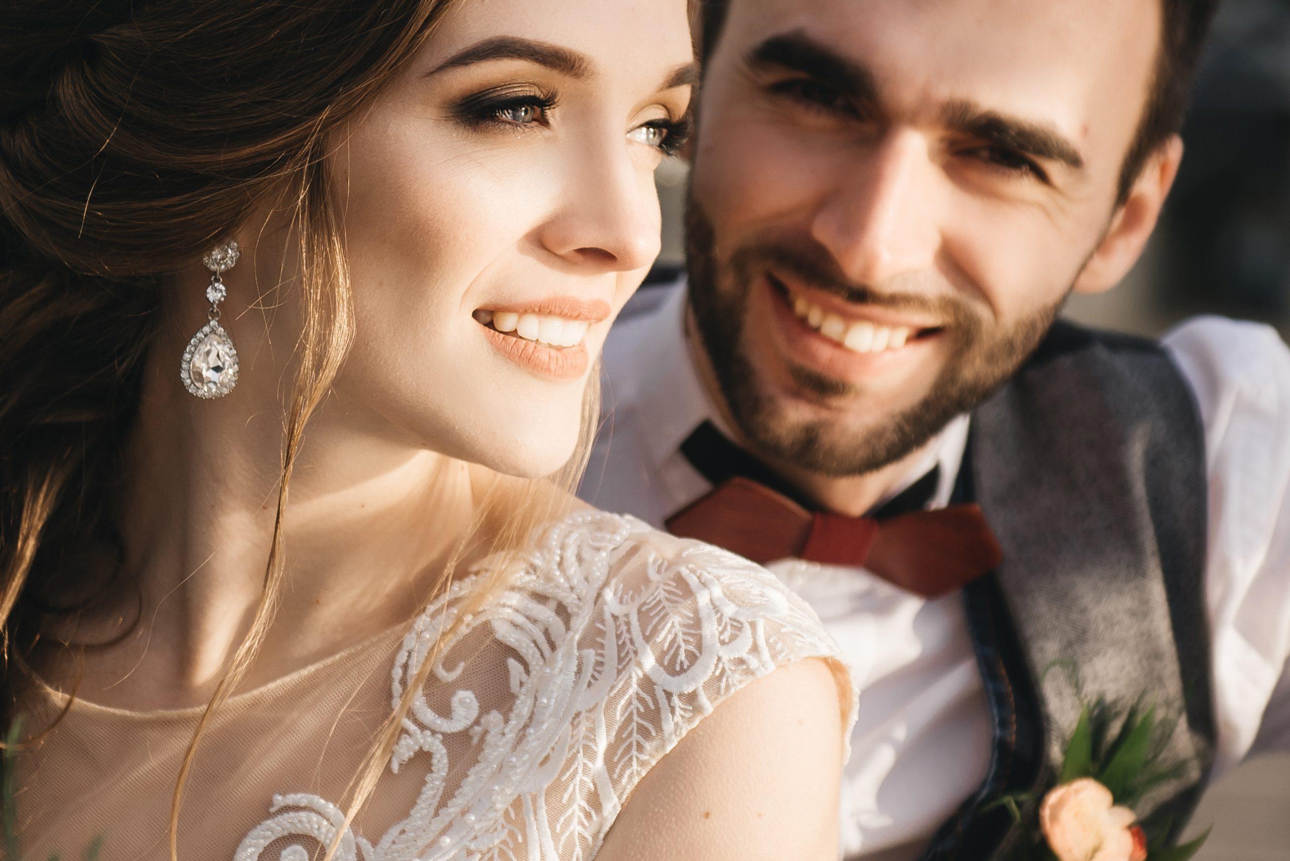 Wedding Smile Makeover Main Pic Aug Blog Scaled